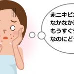 赤ニキビの原因と治し方。なかなか治らないときはどうしたらいい?