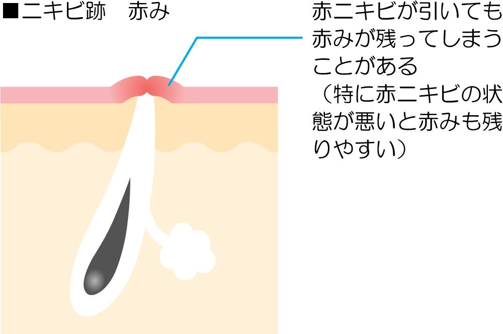ニキビ跡の赤みの解説図