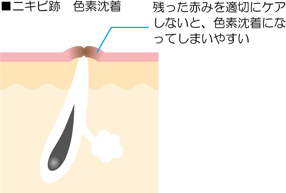 ニキビ跡のシミ・色素沈着の解説図